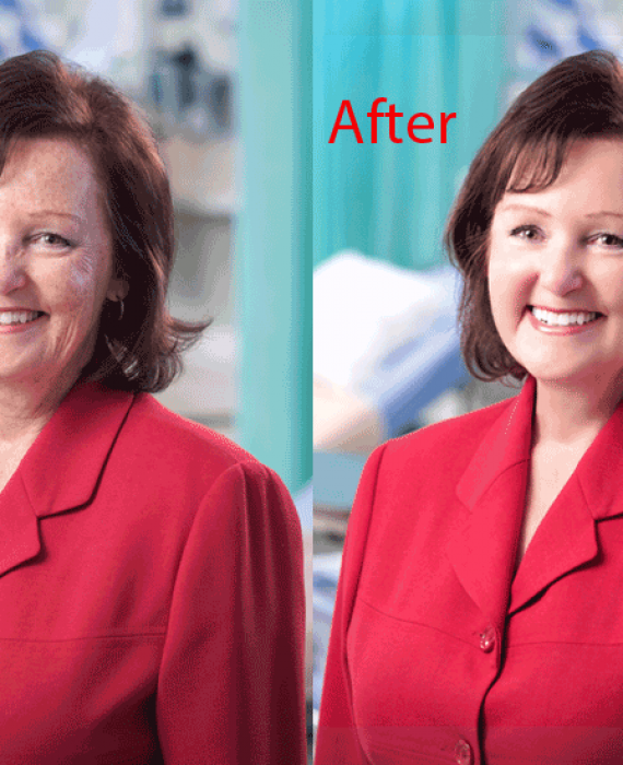 How to Retouch Face in Photoshop